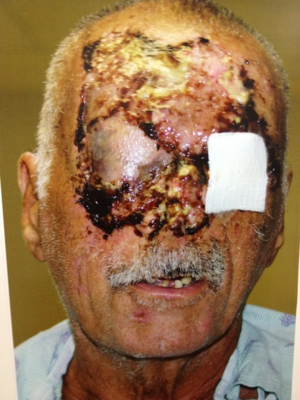 Update Photos Of The Cannibal Attack Victim S Recovery